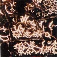Zerfall der Blutkörperchen